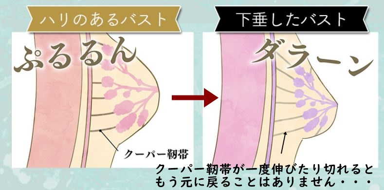 クーパー靭帯が傷付く様子のイラスト