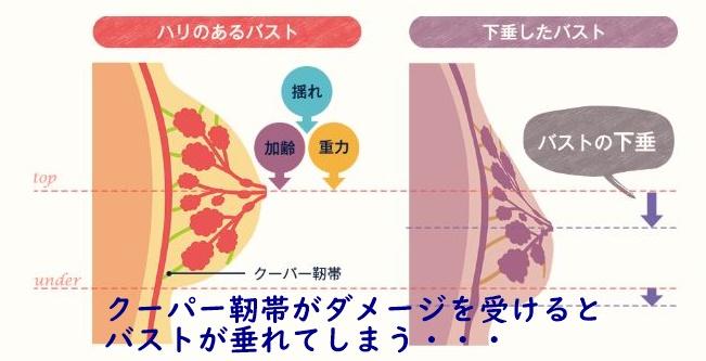 クーパー靭帯が傷つくメカニズムの図解