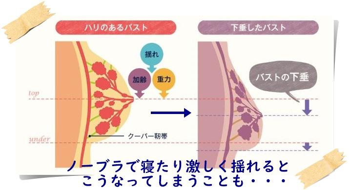 クーパー靭帯が痛む解説図